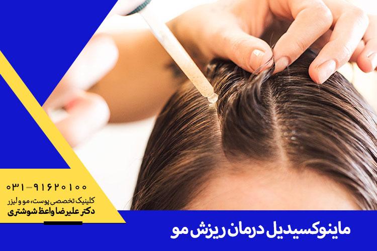 بهترین درمان ریزش مو با ماینوکسیدیل