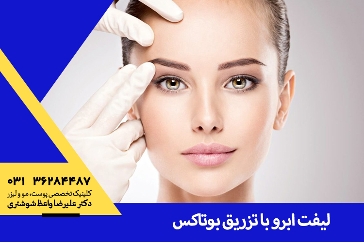 بهترین لیفت ابرو با تزریق بوتاکس در اصفهان