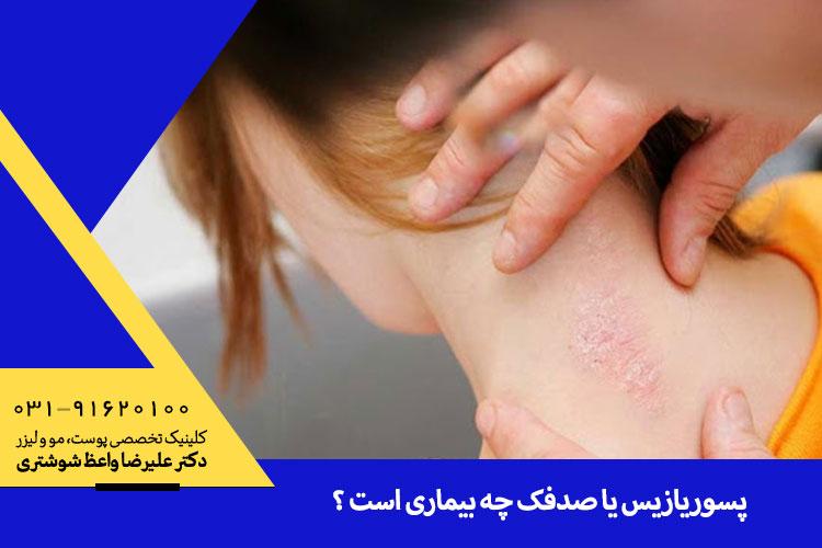 علت و درمان پسوریازیس یا صدفک