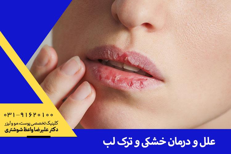 درمان خشکی لب در اصفهان