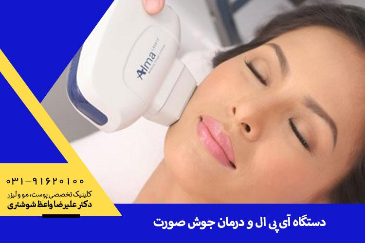 درمان جوش با دستگاه آی پی ال