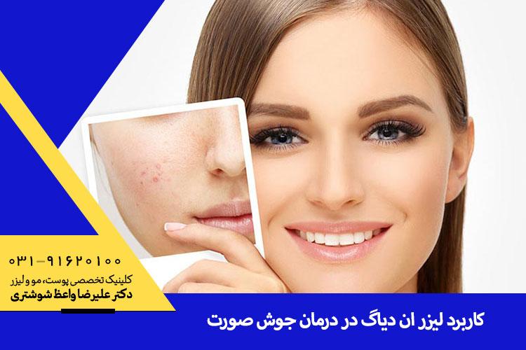 بهترین درمان جوش صورت با  لیزر ان دیاگ