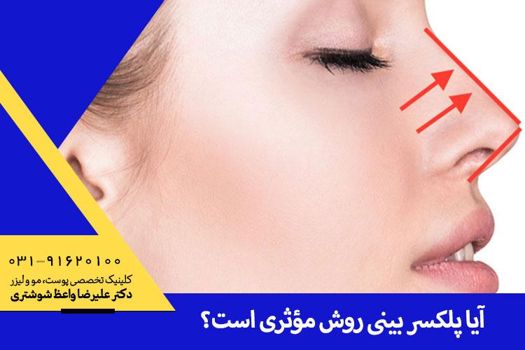 پلکسر بینی چیست؟، بهترین پلکسر بینی در اصفهان