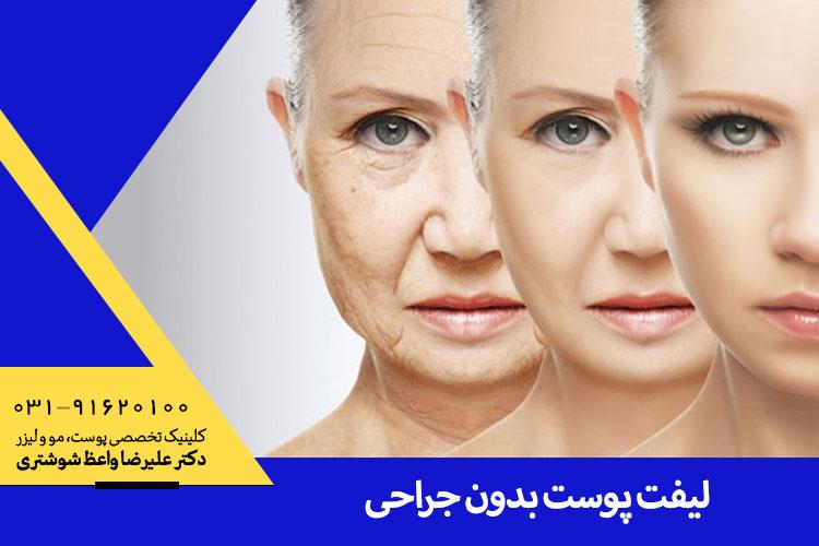 بهترین لبفت پوست بدون جراحی در اصفهان