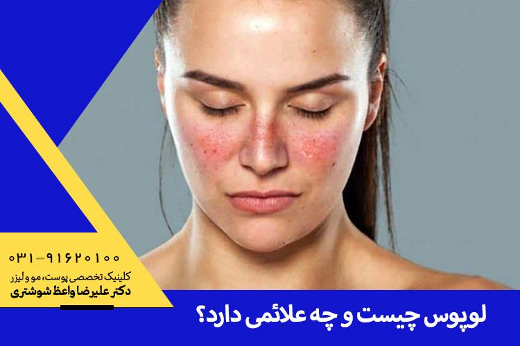 بهترین درمان لوپوس در اصفهان ، بهترین متخصص پوست و مو