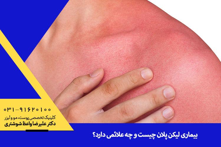درمان لیکن پلان در اصفهان
