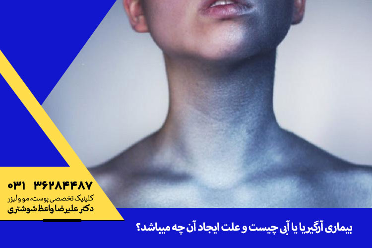 بیماری آرگیریا یا آبی و درمان آن