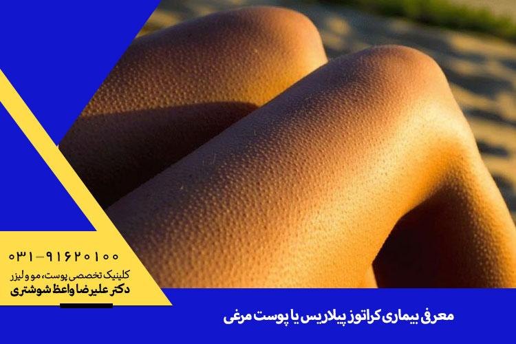 بهترین درمان کراتوز پیلاریس یا پوست مرغی   متخصص پوست اصفهان
