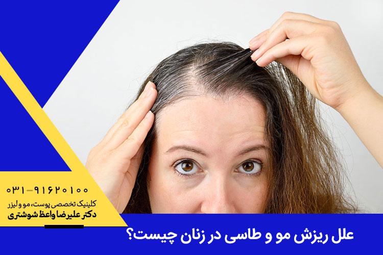 علت ریزش مو و طاسی در زنان چیست
