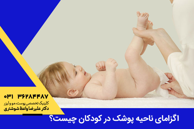 اگزمای ناحیه پوشک در کودکان