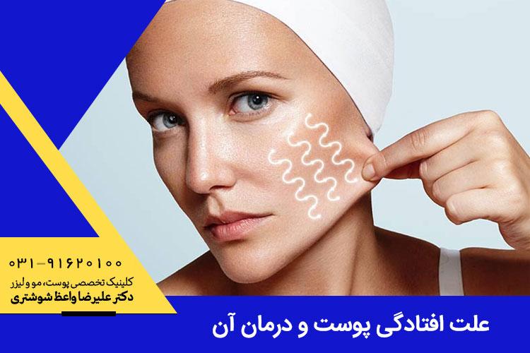 علت افتادگی پوست چیست و چگونه میتوان آن را درمان کرد؟