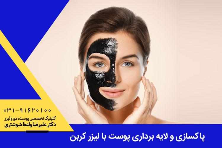 پاکسازی و لایه برداری پوست با لیزر کربن