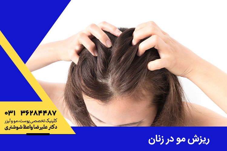 ریزش موی زنان