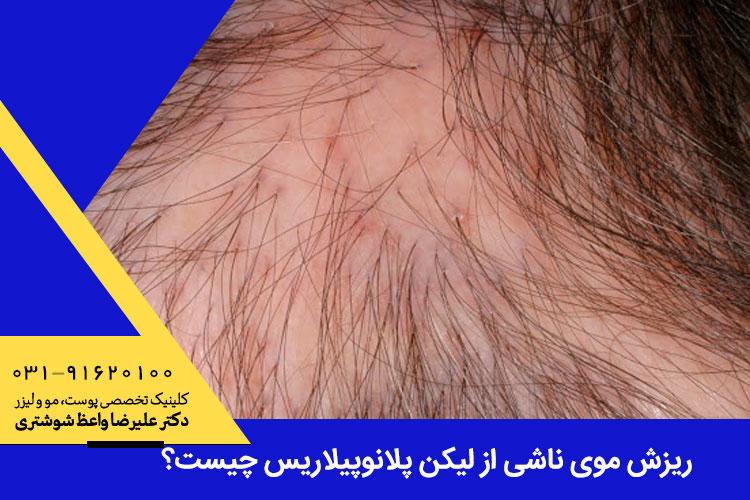 ریزش موی ناشی از لیکن پلانوپیلاریس