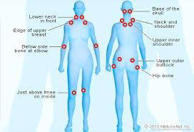 نقاط حساس در فیبرومیالژیا