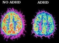 کم کاری در قسمت قدامی مغز