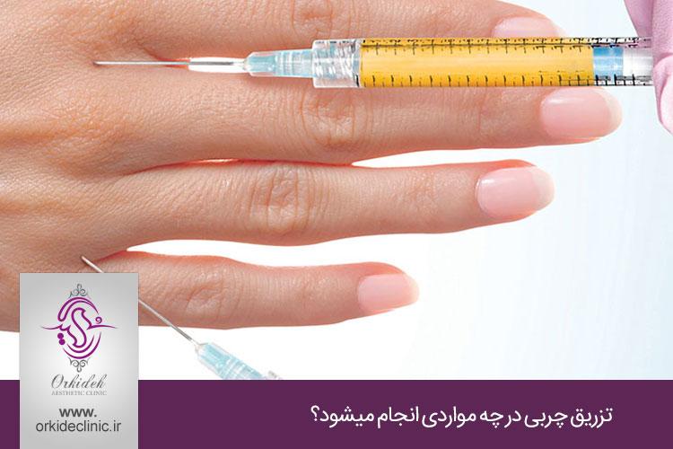 کاربرد تزریق چربی