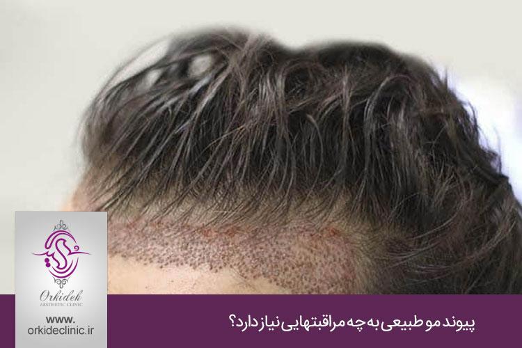 پیوند طبیعی مو