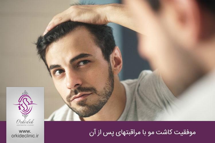 موفقیت کاشت مو با مراقبتهای پس از آن
