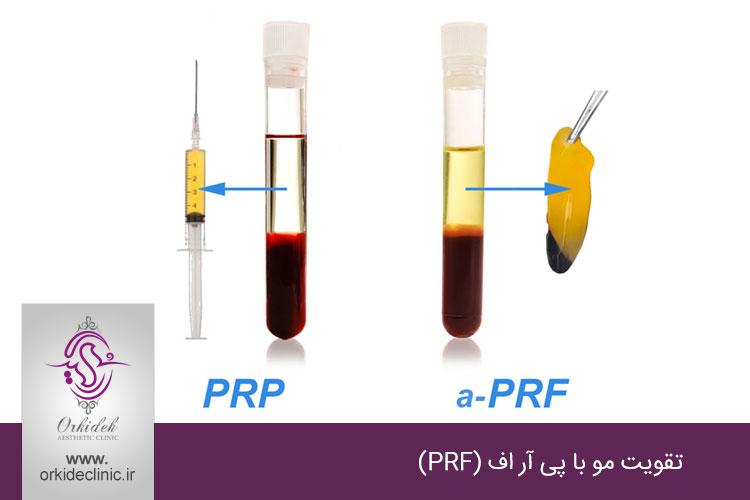 تقویت مو با پی آر اف (PRF)