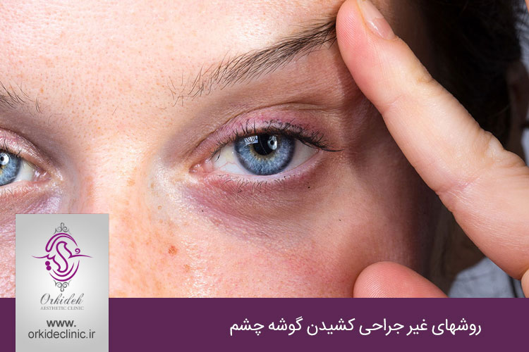 روشهای غیر جراحی کشیدن گوشه چشم