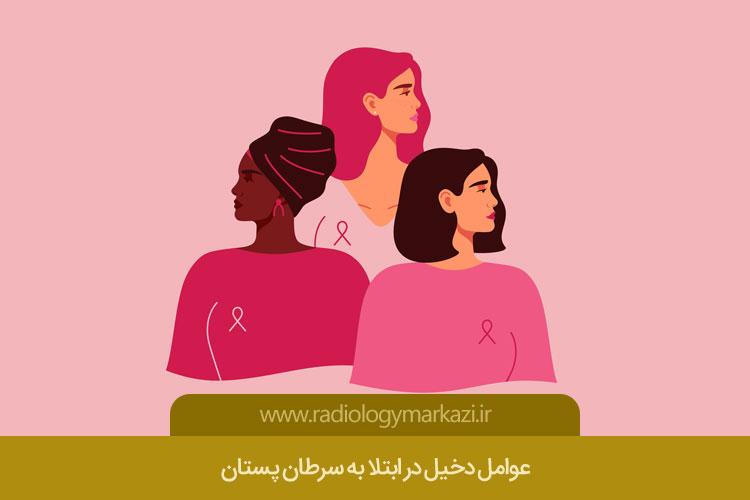 عوامل دخیل در ابتلا به سرطان پستان