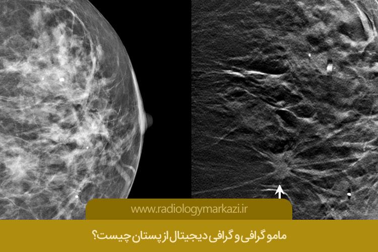 مامو گرافی و گرافی دیجیتال از پستان چیست؟