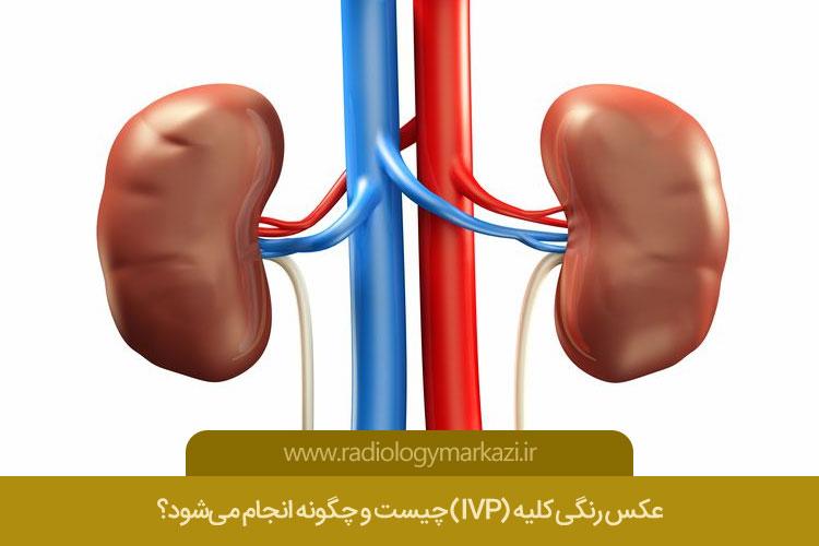 عکس رنگی کلیه (IVP)