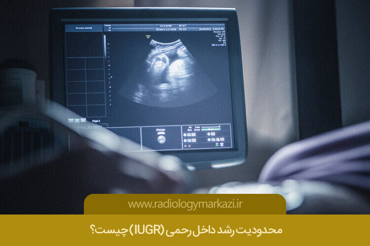 سونوگرافی IUGR در اصفهان