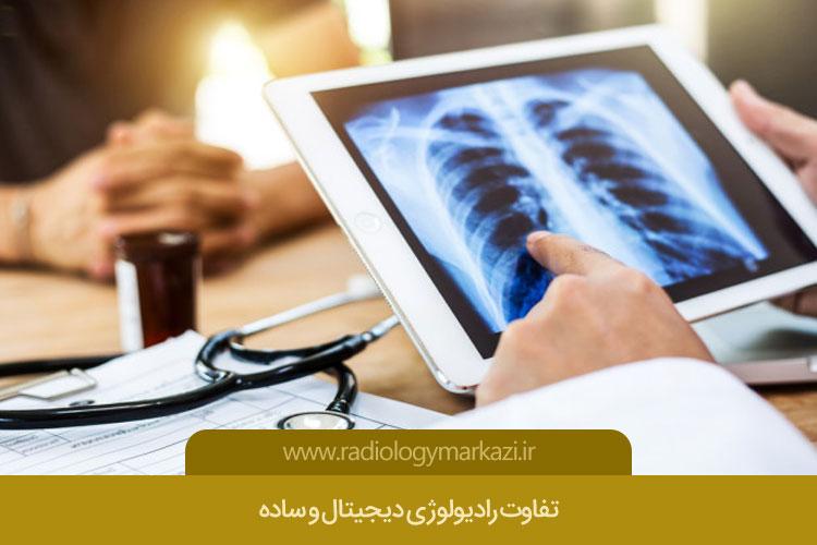 تفاوت رادیولوژی دیجیتال و ساده