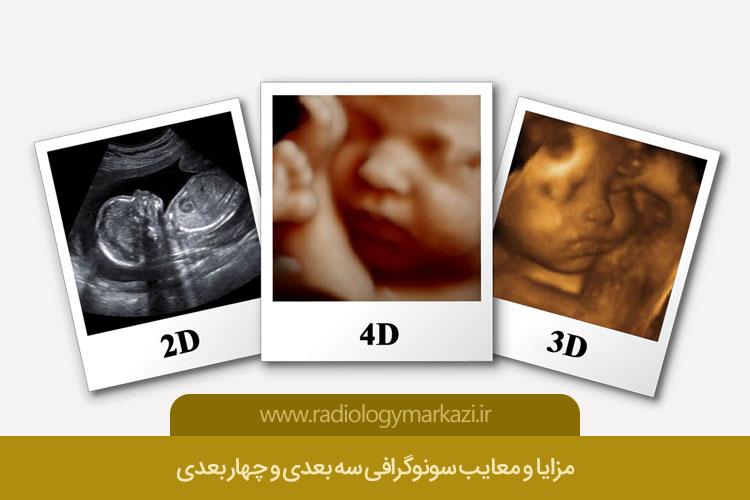 مزایا و معایب سونوگرافی سه بعدی و چهار بعدی