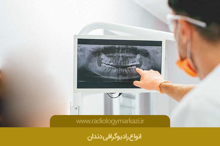گرافی دندان