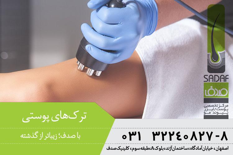 درمان ترکهای پوستی در اصفهان