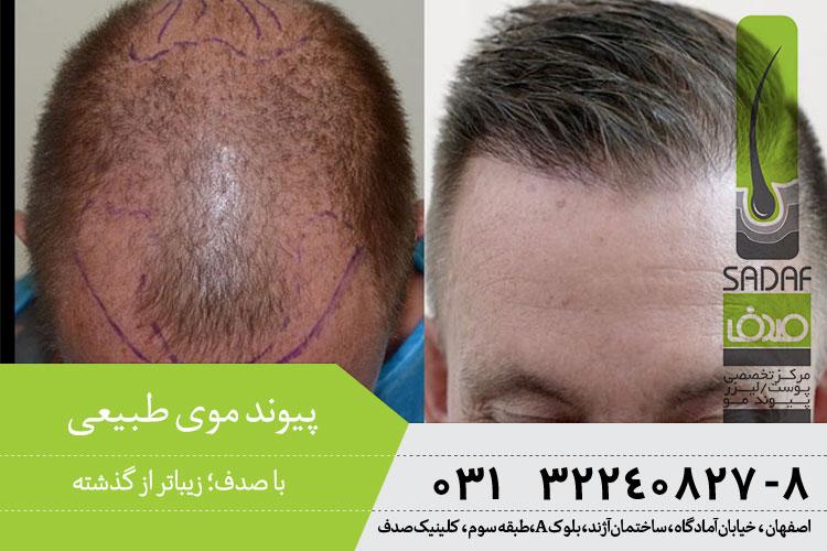 بهترین پیوند موی طبیعی در اصفهان