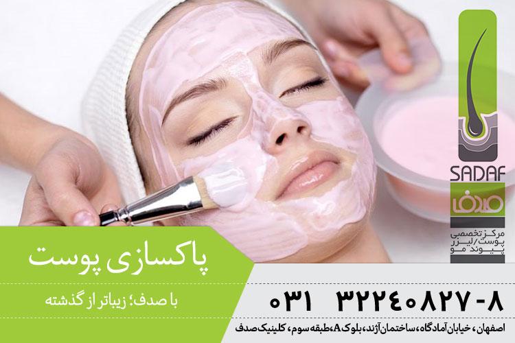 پاکسازی و لایه برداری پوست در اصفهان