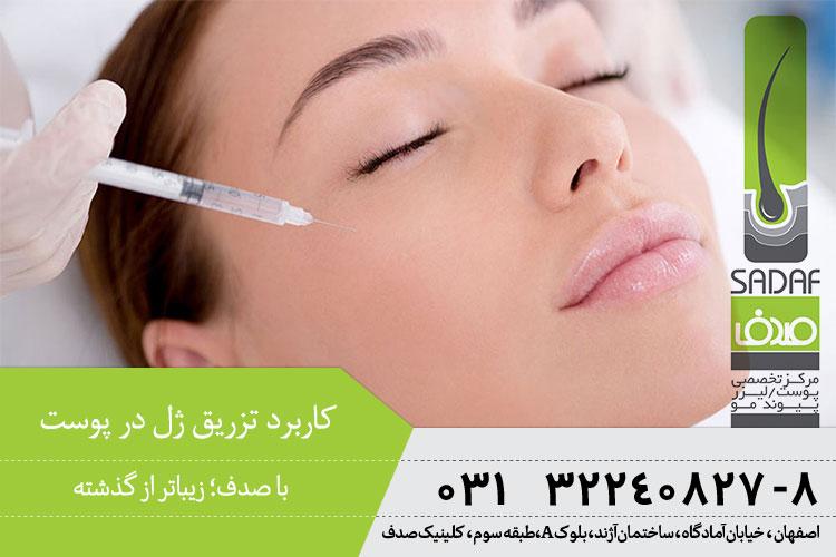 بهترین تزریق ژل در اصفهان