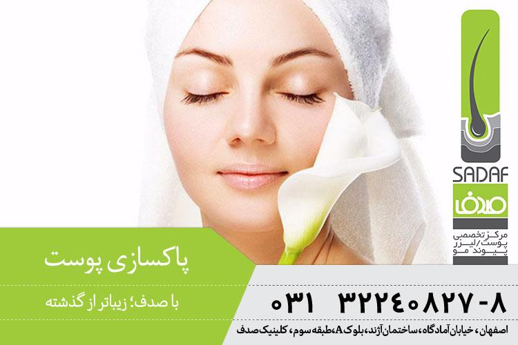 پاکسازی پوست در اصفهان