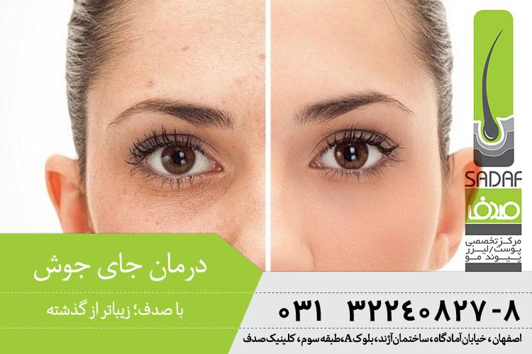 بهترین درمان جای جوش با لیزر در اصفهان