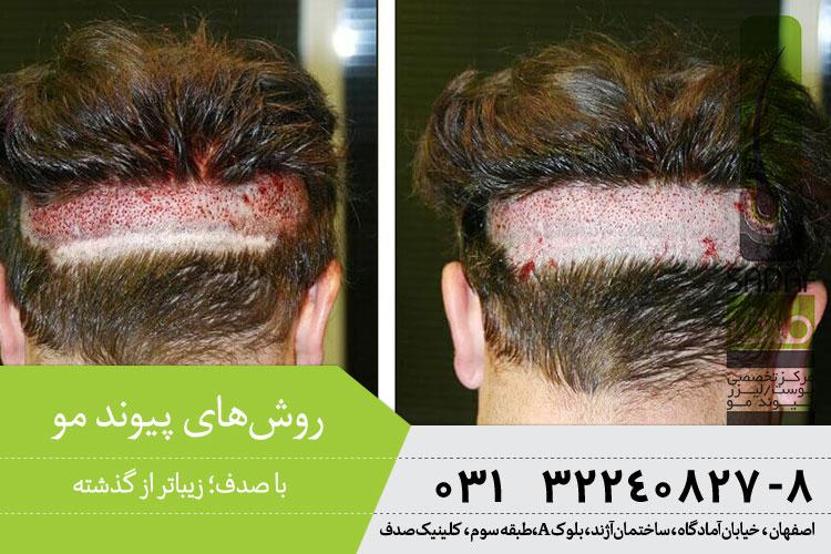 بهترین روشهای پیوند مو در اصفهان