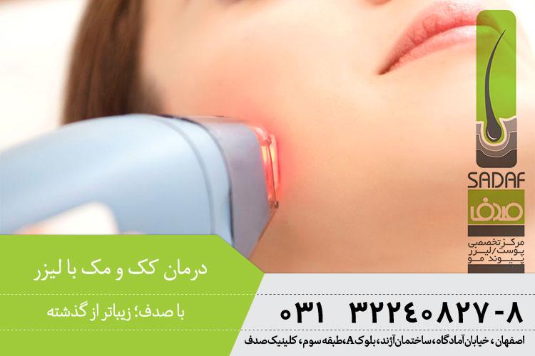 بهترین درمان کک و مک با لیزر در اصفهان