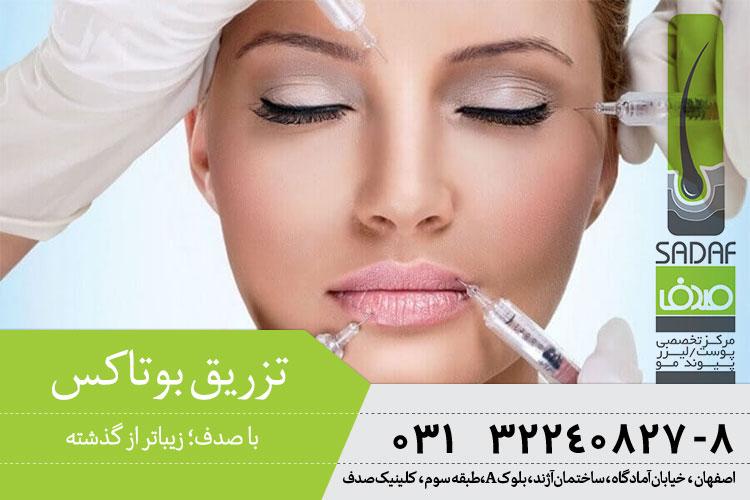 بهترین تزریق بوتاکس در اصفهان