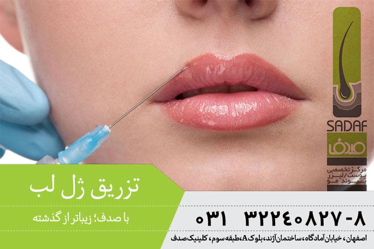 بهترین تزریق ژل لب در اصفهان