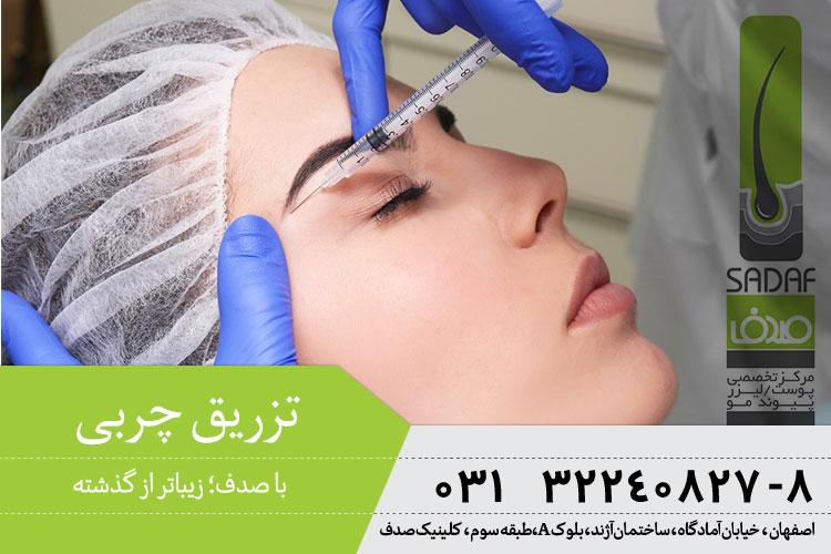 بهترین تزریق چربی جوانسازی در اصفهان