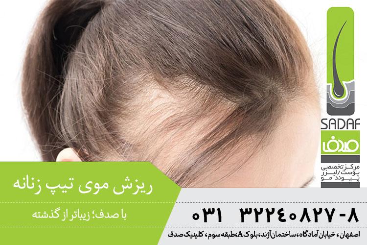 درمان ریزش موی تیپ زنانه
