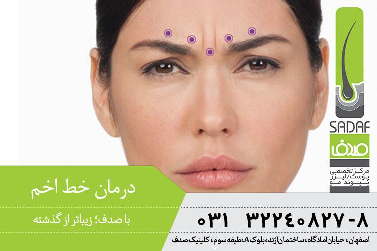 درمان خط اخم در اصفهان