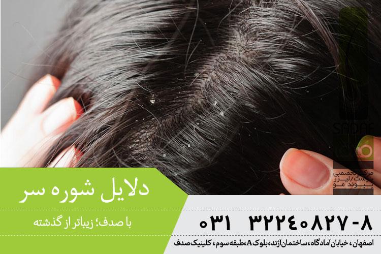 درمان شوره سر در اصفهان