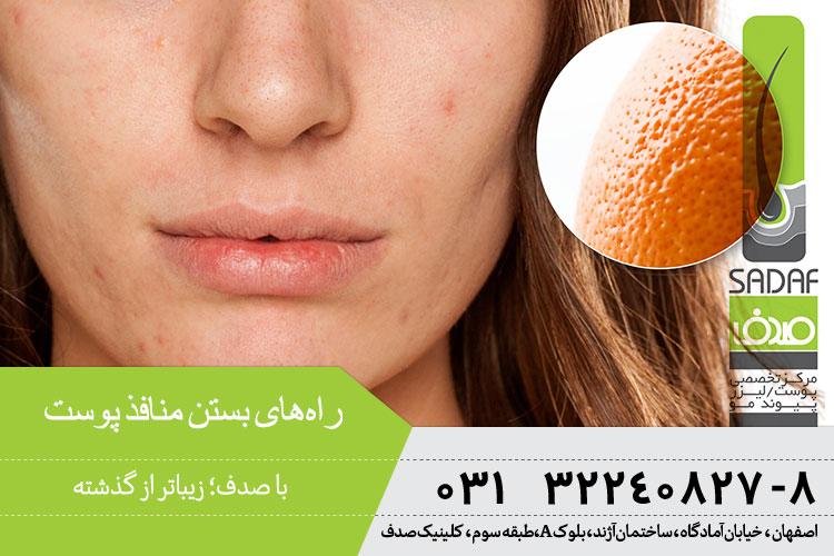 راههای بستن منافذ پوست