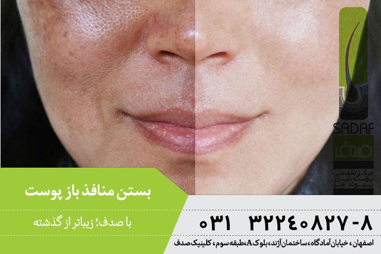 بستن منافذ باز پوست در اصفهان