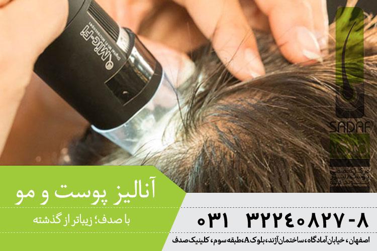 آنالیز پوست و مو در اصفهان