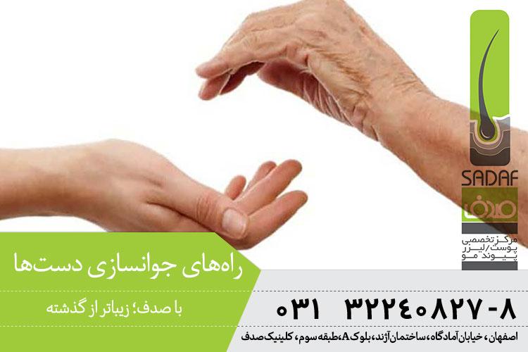 راههای جوانسازی دستها در اصفهان